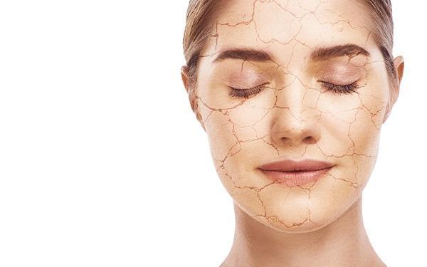 Sucha skóra: jak ją pielęgnować? Rodzaje suchej skóry