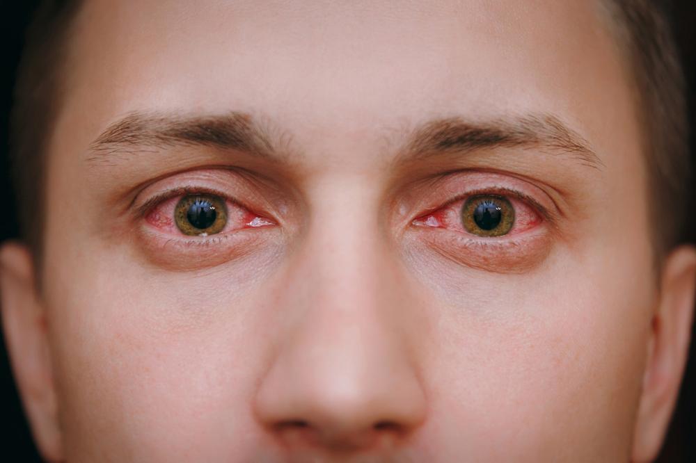 Czerwone, przekrwione oczy: przyczyny